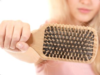 łysienie androgenowe u kobiet